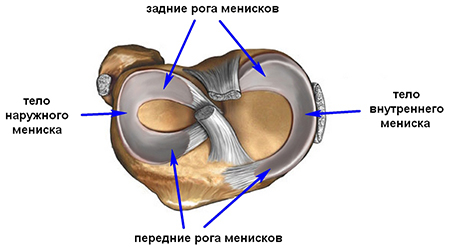 Артроз колена для чего делают блокаду