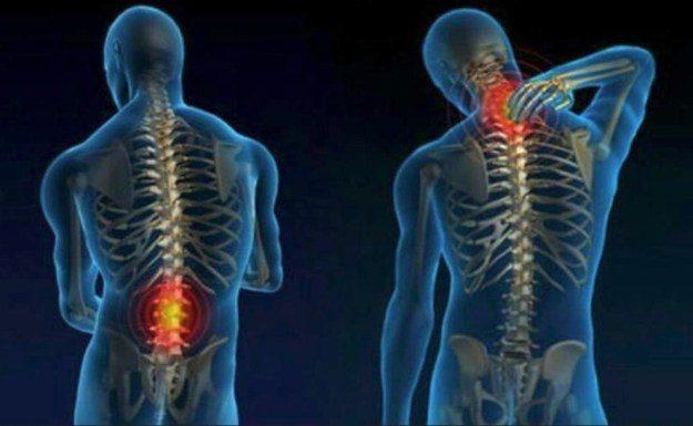 Причины симптомы и методы лечения шейного остеохондроза