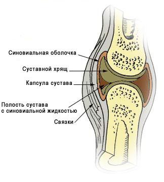 Нехватка или отсутствие суставной жидкости ортопедический пластырь для суставов