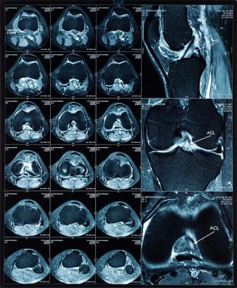Magnetic resonance tomography (MRT)