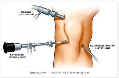 artroscop_operaziya
