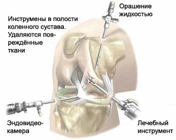 operaz_menisky