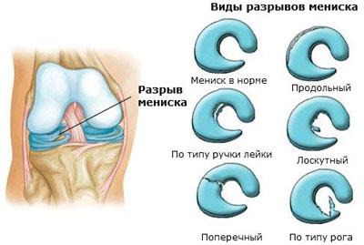 vidy_razrivov
