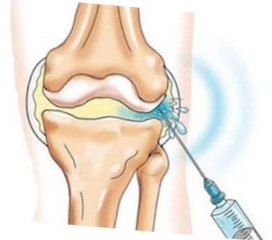 Гиалуроновая кислота для сустава рентгенография тазобедренных суставов с высоты 115