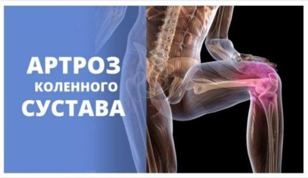 Лечение артроза тазобедренного сустава самара аломапия суставов