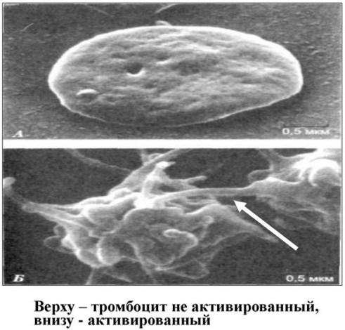 Активированный тромбоцит
