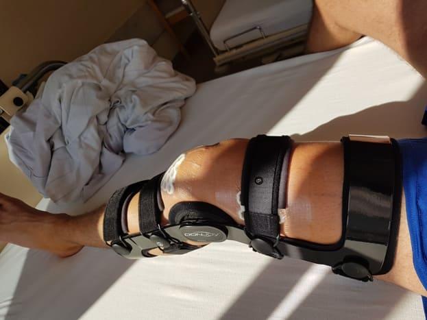 Ортез контролируемого угла сгибания колена