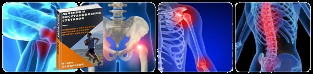 книга-лечение и восстановление суставов