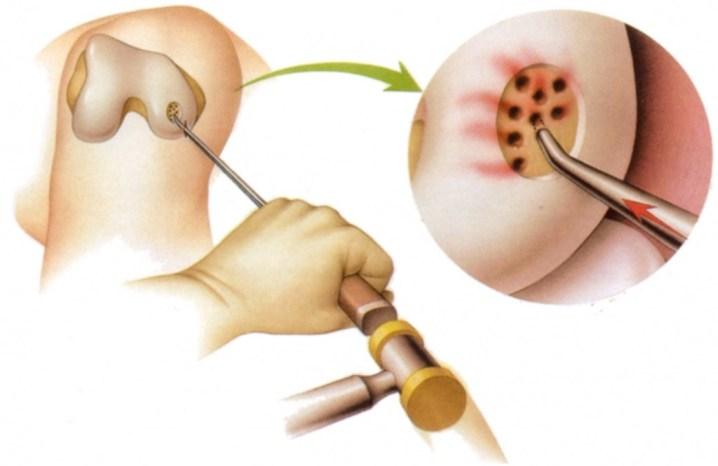 Изображение - Укол после операции на суставе microfracturirovanie