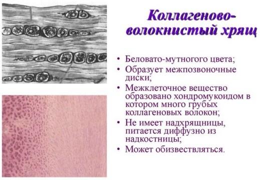 Изображение - Укол после операции на суставе voloknistiy_xrjash