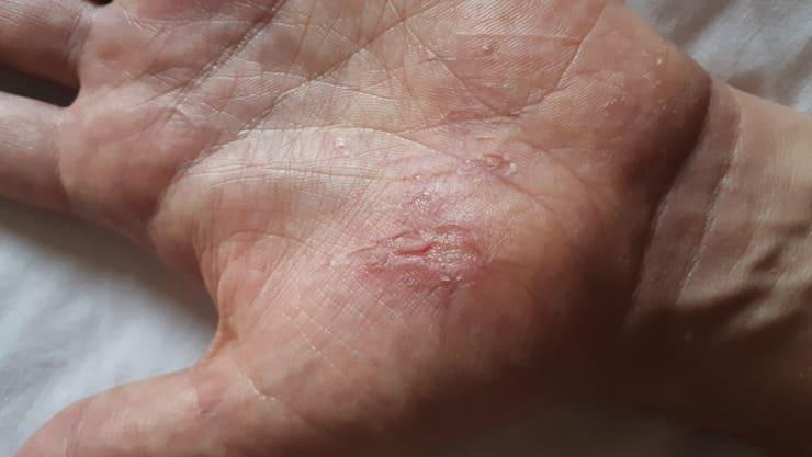 травмы кожи