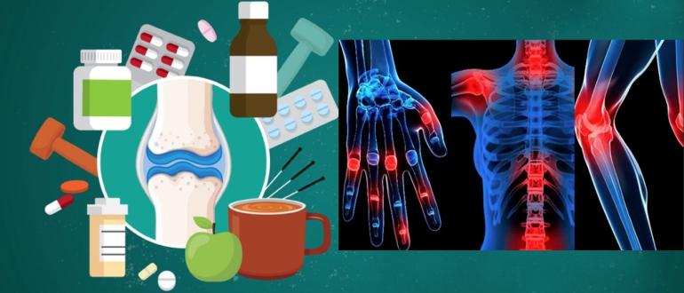 Боли в суставах рук и ног причины и лечение