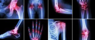 вредные продукты вызывающие артрит